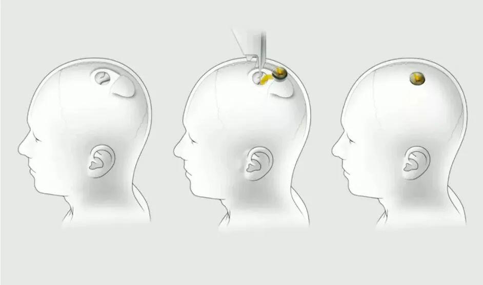 马斯克发布脑机接口重大突破:活猪实验成功,已获FDA认证,人体试验在即